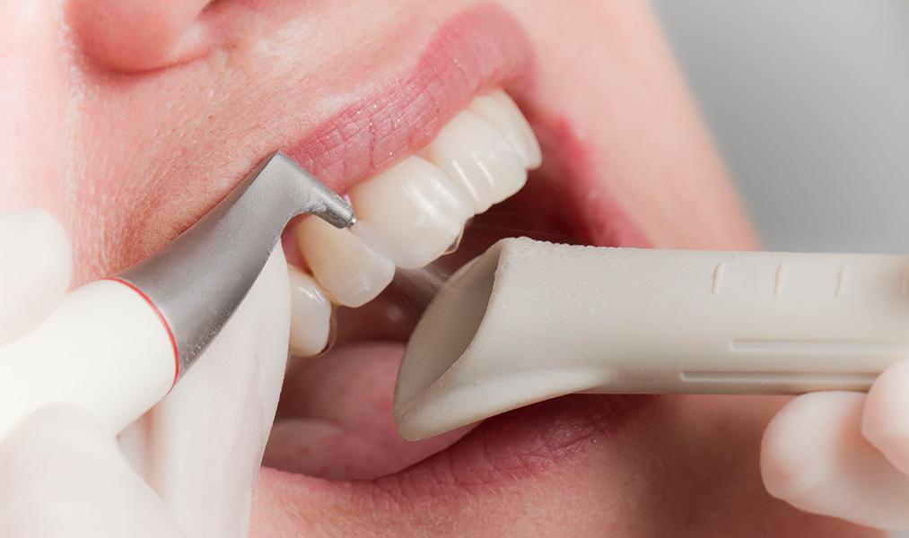 Инструкция аппарата вектор в стоматологии