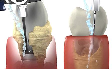 Вектор для зубов противопоказания