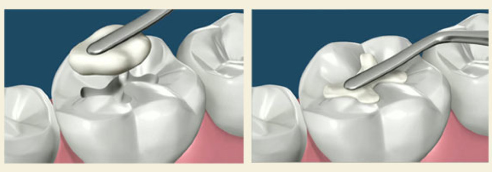 5 different types of dental cements