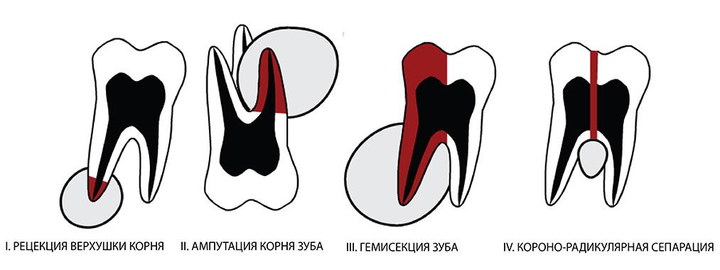 Ампутация корня одного зуба