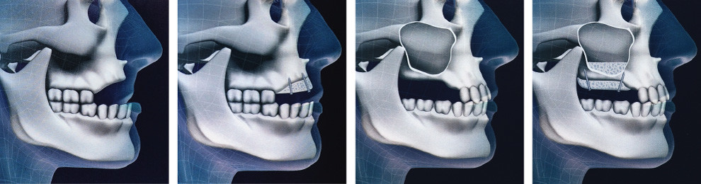 Bone grafting*