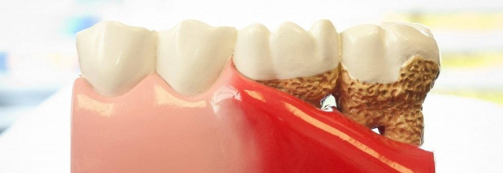 Gingival recession*
