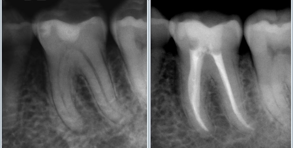Эффективное стоматологическое лечение