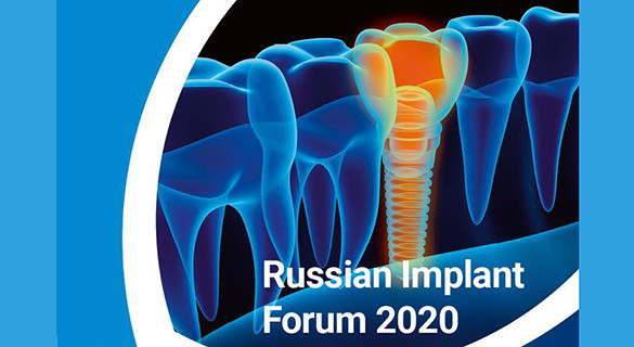 Russian Implant Forum